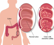 Boli intestinale care provoaca mucus in exces